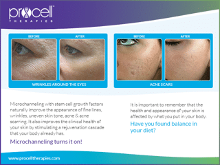 hautigo-spa-services-microneedling-Procell-Before-and-After-1