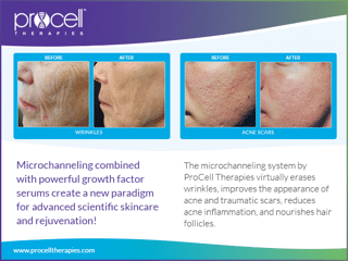 hautigo-spa-services-microneedling-Procell-Before-and-After-2